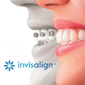 mouth with invisalign mouth without invisalign