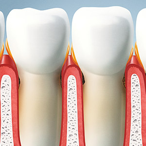 tooth and gums illustration