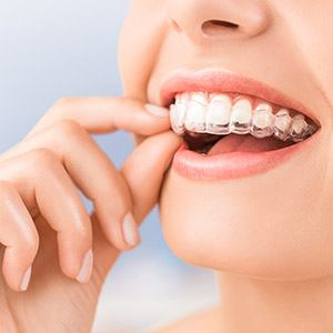 Clear braces aligners