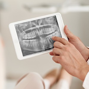 Panoramic dental x-rays on tablet