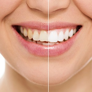 Closeup of smile split before and after teeth whitening